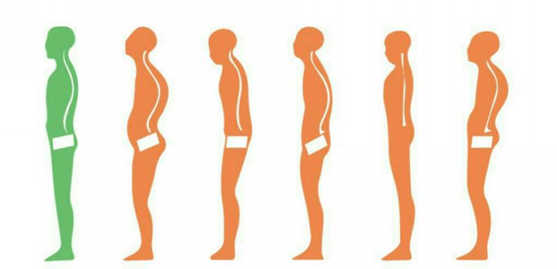 「背骨」の画像検索結果